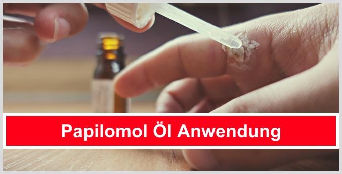 papilomol öl anwendung dosierung